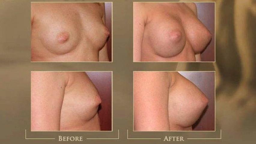 https://www.austinplasticsurgeons.com/wp-content/uploads/video/breast_aug