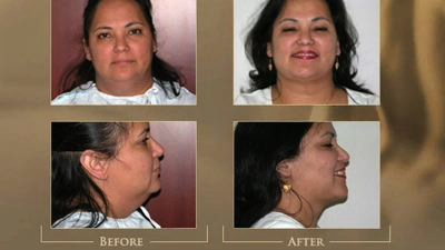 https://www.austinplasticsurgeons.com/wp-content/uploads/video/necklift