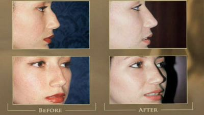 https://www.austinplasticsurgeons.com/wp-content/uploads/video/rhinoplasty
